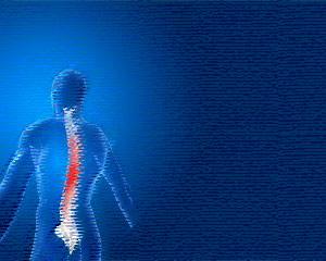 Backache Medical PowerPoint template